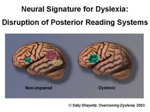 Dyslexia in Design